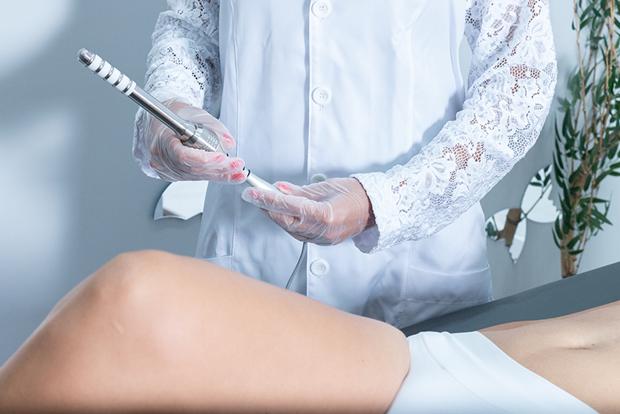 Tratamento com radiofrequência íntima melhora muito a qualidade de vida de mulheres que sofrem com flacidez vaginal