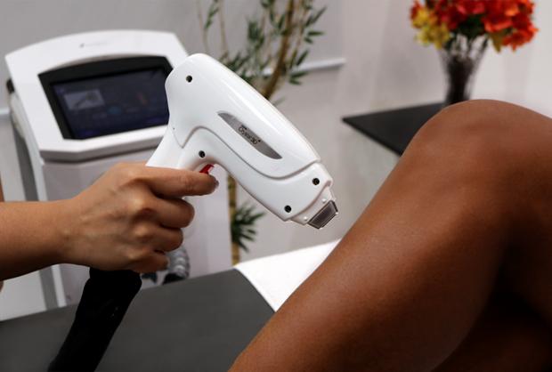 Depilação a laser segura em pele negra é possível, desde que escolhido o equipamento certo